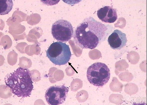 白细胞分类计数及临床意义