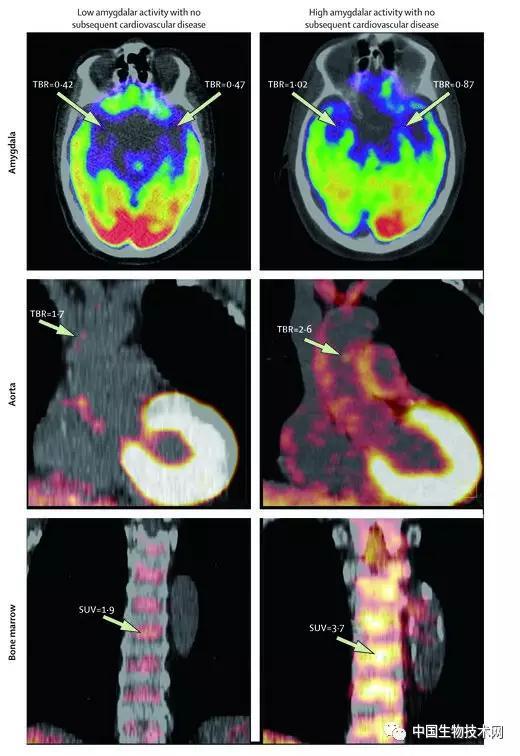 杏仁核通过提高免疫系统活性增加心血管疾病发病率
