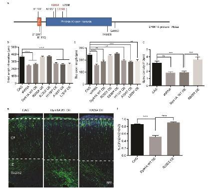 《孤独症相关的Dyrk1a无义突变影响神经元树突、树突棘生长及皮层发育》