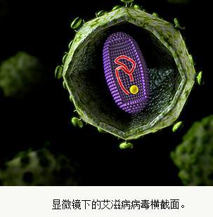 高福院土:艾滋病疫苗的前景和发展方向