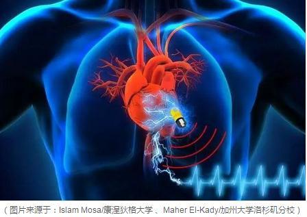 一种由生物超级电容和能量采集设备构成的系统为植入式医疗设备供电