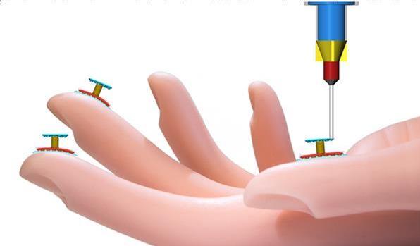 由柔软的弹性硅胶制成的3D打印传感器可增强人的触感