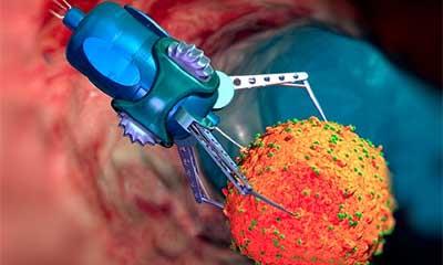 一种高出原子力10倍超灵敏探测装置可感受到细菌移动产生的力量