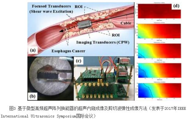 苏州医工所突破了微型高频超声换能器的核心工艺技术