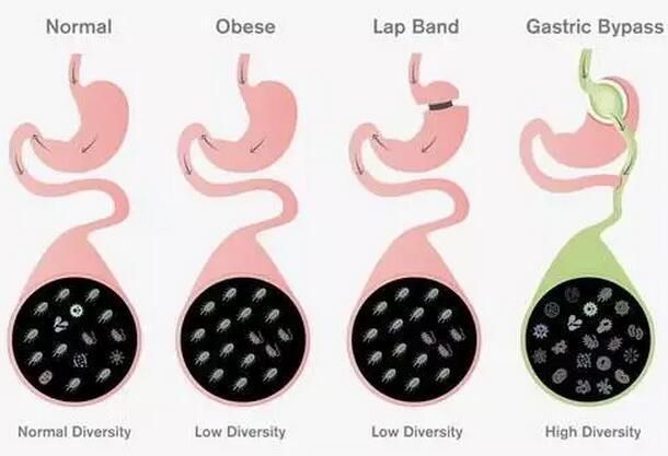 美国研究发现可助人减重的微生物群