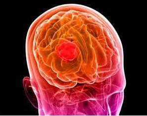 美科学家:寨卡病毒能杀死恶性胶质瘤细胞