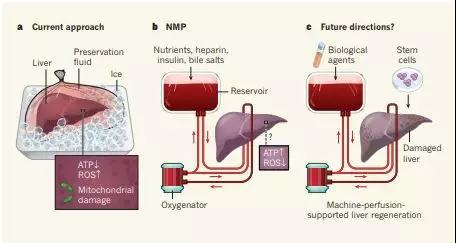 """使用""""生命支持系统""""在体温下保存肝脏或可改善移植结果"""