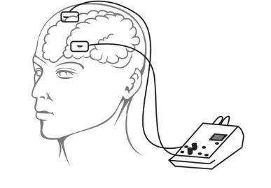 电流刺激大脑可以提高记忆力15%