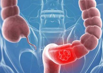 结直肠癌早期症状不明显,应警惕大肠癌并及早发现、早治疗