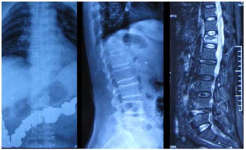 Zimmer特发性脊柱侧凸医疗器械Tether-椎体束缚系统获FDA首批