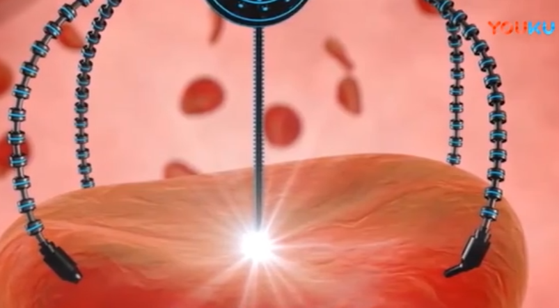 哈尔滨工业大学教授发明智能微纳机器人, 将成为癌细胞侦察兵?