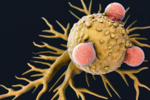 德国癌症研究中心发现GPD1可作为胶质母细胞瘤干细胞的有效靶点