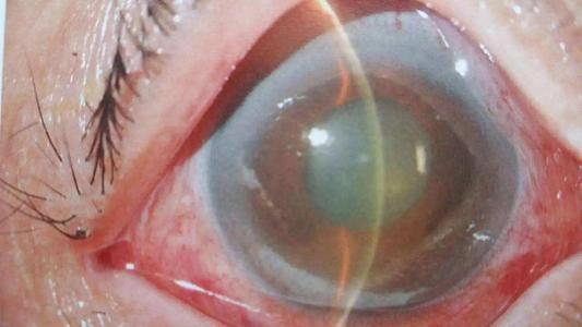 艾尔建首个持续释放生物可降解植入物产品申请上市 青光眼新药!