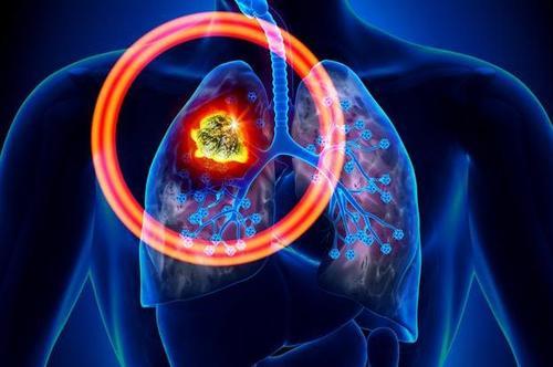 阿斯利康官宣奥希替尼OS阳性结果,肺癌靶向新高生存时代开启