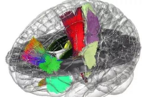 首个全息大脑图谱建立 或大大促进神经解剖和脑外科