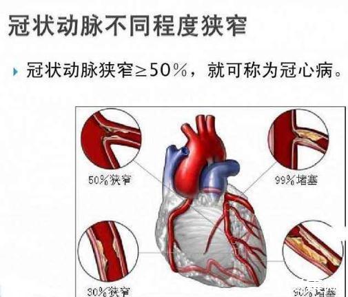 冠心病诊断新技术,比常规冠脉造影检查准确率提高33%