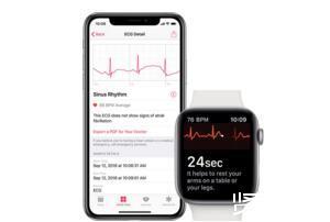watchOS 5.1.2发布,增加ECG心电图app