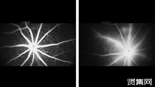 AXT107药物治疗失明疗效是预想两倍,明年对糖尿病性黄斑水肿患者进行临床试验