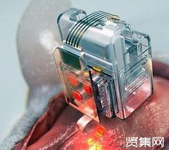 韩国科学家开发出一种软性神经植入物,可通过手机控制