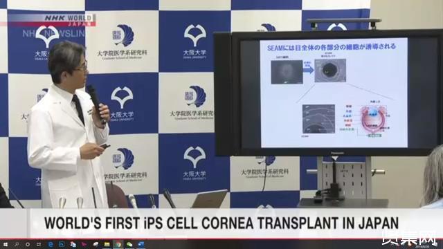 全球首例对利用iPS细胞培养出的角膜组织进行移植的手术