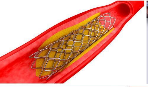 震惊!上万的心脏支架降价至千元内,降价幅度大超市场预期