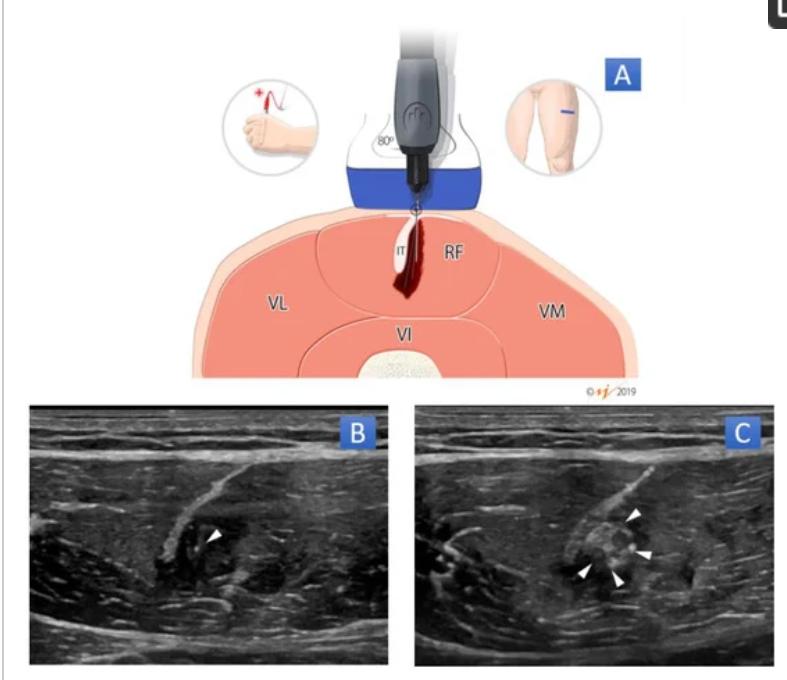 新研究发现:在超声引导下经皮针电解(PNE)可以有效治疗股直肌损伤