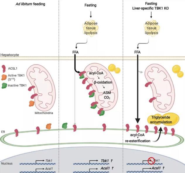 脂肪肝治療新依據!加州大學揭示TBK1調控肝細胞脂肪酸氧化的新機制