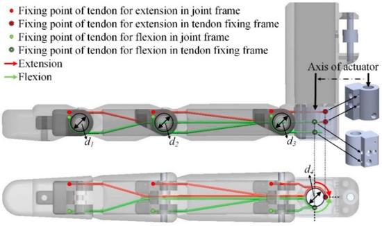 科学家利用三维打印技术为手指截肢患者换上假肢!