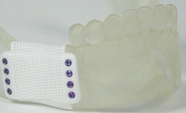 3D打印的陶瓷既可以作为骨移植物,也可以作为支撑物