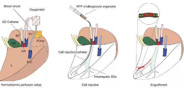 英学者成功利用胆道类器官移植实现胆道再生