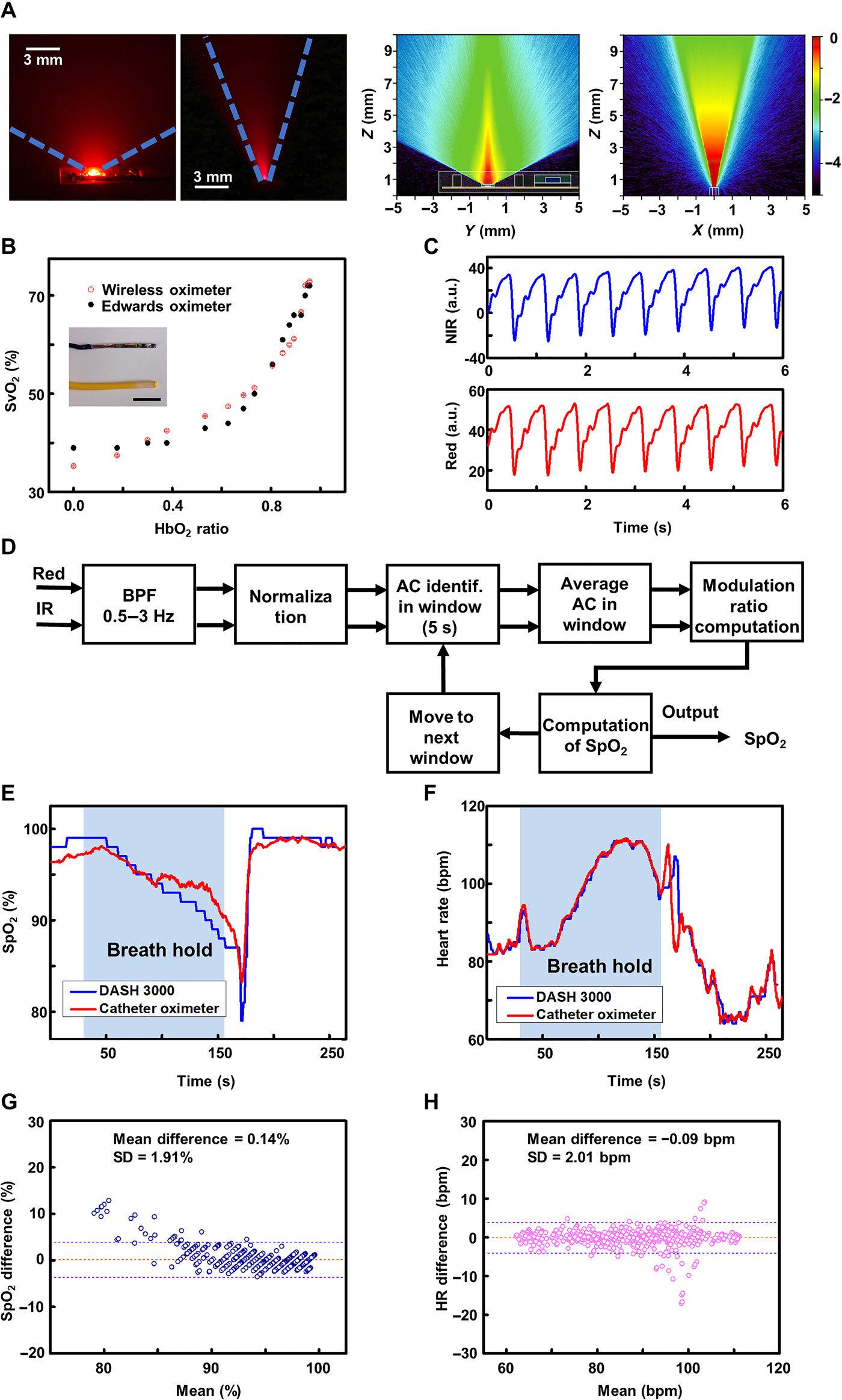 国际研究小组研发微型可植入光电导管系统 可用作手术中监测血氧浓度