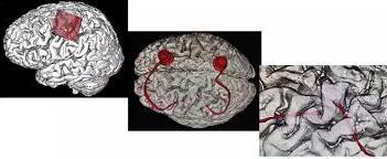 中国第一例人体大脑智能脑机手术成功了:72 岁老爷子的瘫痪四肢能动了