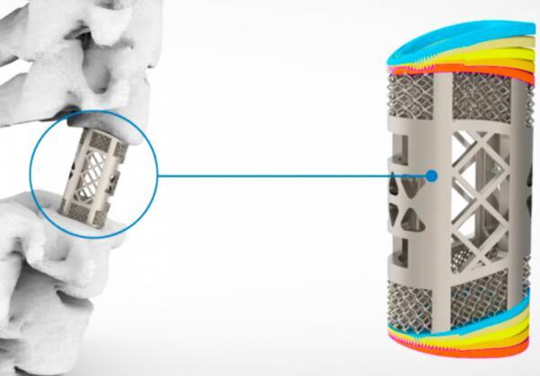 国产3D打印脊柱植入物首次获得NMPA许可,具有里程碑式意义