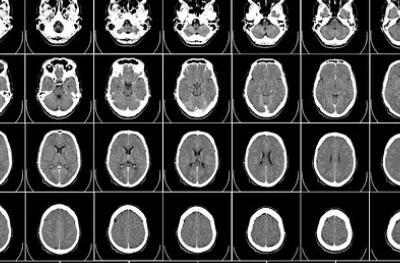 研究人员通过影像技术,发现新冠肺炎对除了肺部以外其他器官的影响