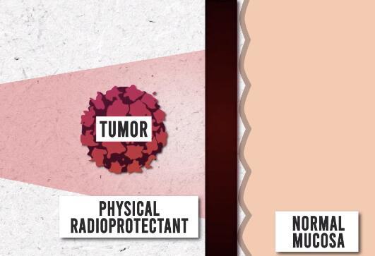 3D打印为癌症患者定制胃辐射防护屏,可以明显减少放疗期间的副作用