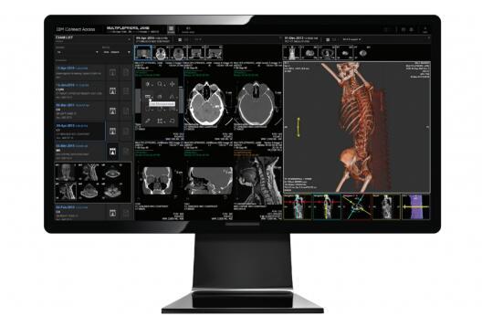 IBM和理光合作,简化了生成3D打印解剖模型的过程