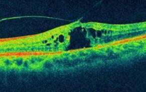 基于光的成像技术可以更好地监测损害神经元的眼脑疾病