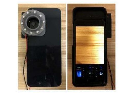 《【欧亿注册地址】华盛顿大学开发出利用智能手机摄像头观察道细菌的方法》