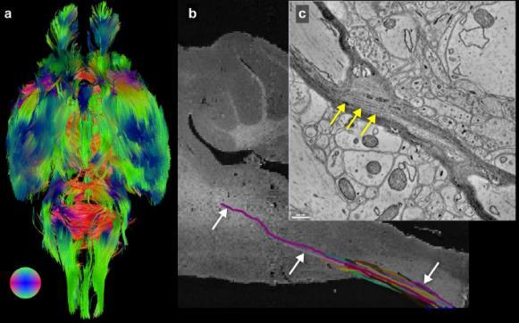 使用先进的 X 射线技术,研究人员首次对整个小鼠大脑进行成像