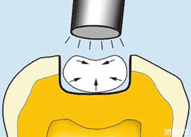 俄專家用蛋殼提取物制出牙科粘合劑,盤點牙科粘合劑歷史