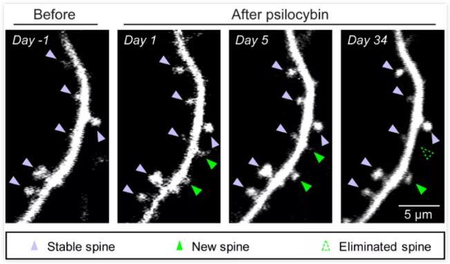 耶魯大學首次發現抗抑郁化合物賽洛西賓結構可塑性改變的奧秘