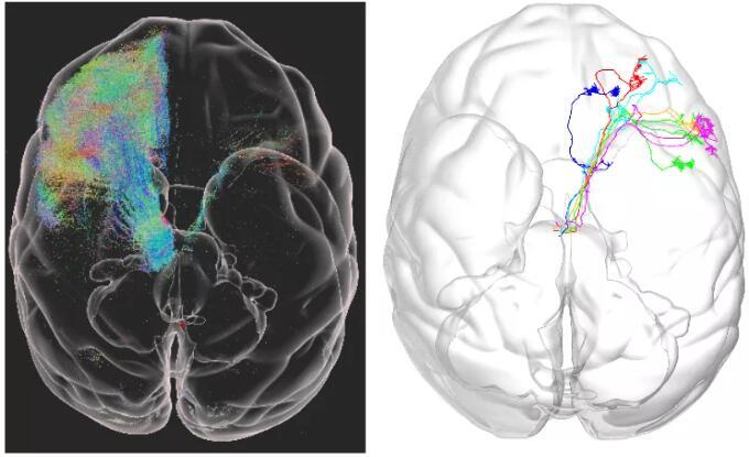 猕猴大脑的微米级分辨率三维结构图谱来了,有什么意义?
