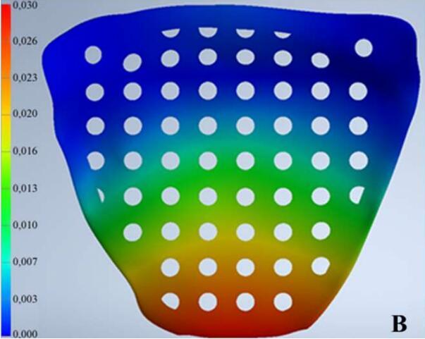 新型 3D 打印植入物用于治疗眼窝骨折,可降低患者排斥的风险