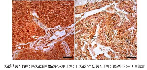 非小细胞肺癌中FAK的结构变异体研究进展