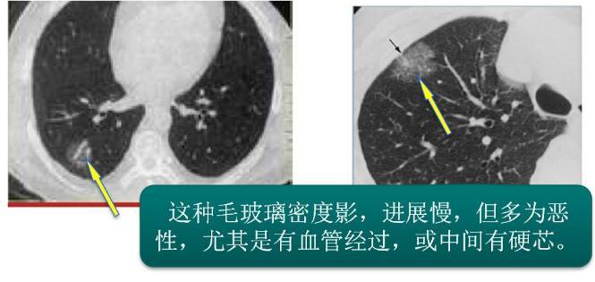肺部小结节怎么治疗?怎么预防肺癌?