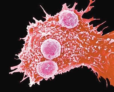 美国首次尝试使用CRISPR治疗癌症