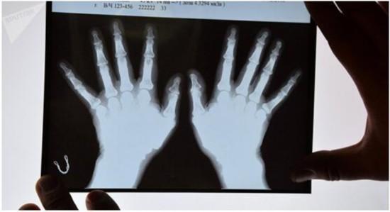俄罗斯专家开发出长合骨骼的植入物 无副作用