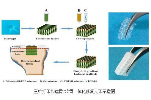 三维打印构建骨/软骨一体化修复支架研究进展