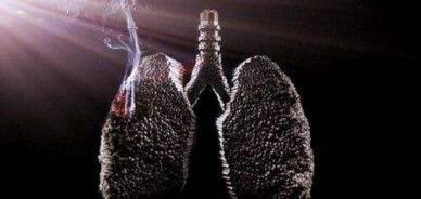 什么人容易得肺癌?引起肺癌的病因有哪些?
