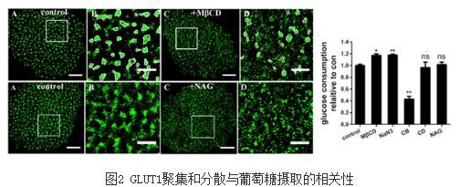全新的角度看待胰岛素抵抗对GLUT4的影响